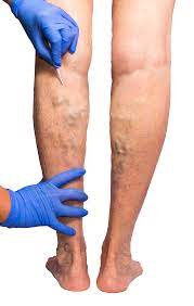 What's the Best Varicose Vein Center in NJ? And Other Questions
