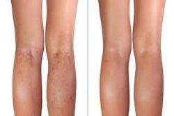 How can I find the right varicose vein center in Texas?