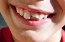 Do you need emergency dental care?Dentist Reviews Near Me