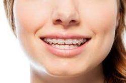 Orthodontist Open On Saturday Near Me