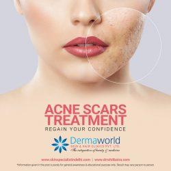 Acne scar treatment in Delhi