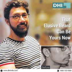 Beard Transplant in Bangalore – DHI India