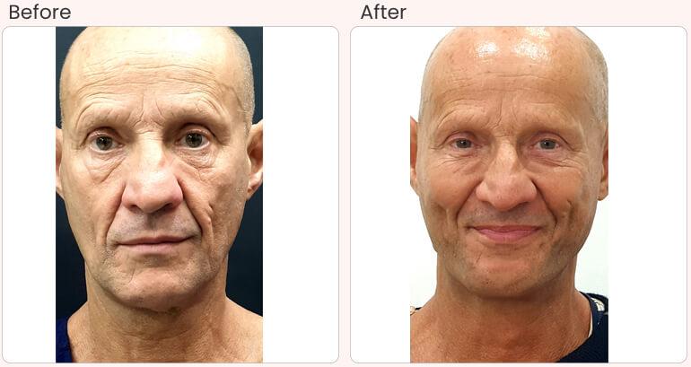 Facelift Surgery in Delhi