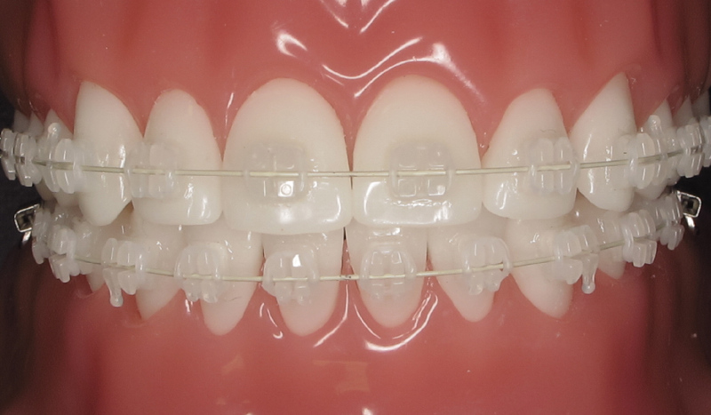 FOODS TO EAT AFTER GETTING BRACES TIGHTENED