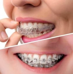 Best Dentist are Near Me