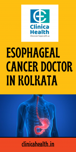 Best Esophagus Cancer Treatment in Kolkata – Clinica Health