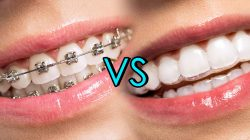 WHAT IS A LINGUAL HOLDING ARCH AND BRACES WORK?