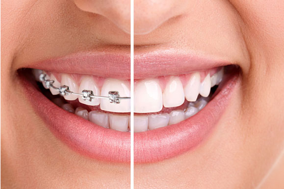 IS THERE AN AGE LIMIT FOR GETTING BRACES?