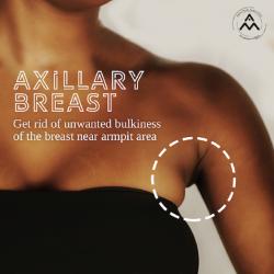 Female Breast Reduction in Delhi