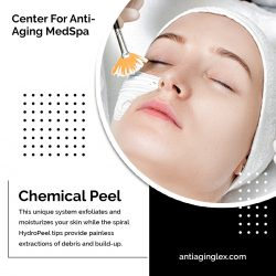 Chemical peel for hyperpigmentation at Centre For Anti-Aging Med Spa