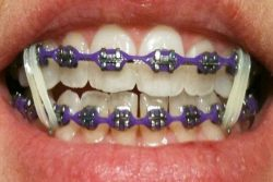 WHAT IS THE AVERAGE COST OF BRACES FOR CHILDREN