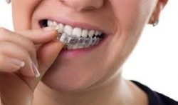 The Benefits of Choosing Invisalign Braces | Invisalign Consultation Today
