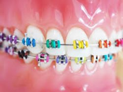 Which Is Best For You: Ceramic Braces or Metal Braces?