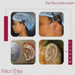 Microtia in Mumbai, India, USA, England | Microtia Ear Treatment