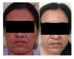 Best Facelift Surgery in Delhi | Dr. Vivek Kumar