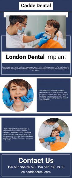 Find The Best London Dental Implant – Cadde Dental