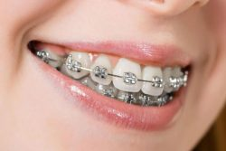COST OF RETAINERS – CONSUMER INFORMATION