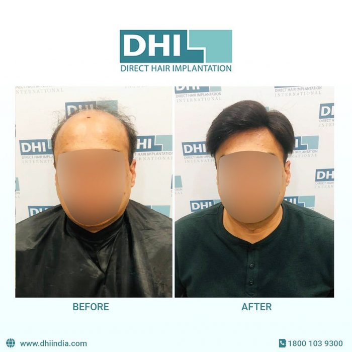 Hair Transplant Cost in Bangalore – DHI India