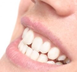Types of Dental Retainers to Wear After Braces | Clear Retainers near me