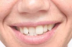 INVISALIGN BRACES STEP-BY-STEP WITH AN ORTHODONTIST INVISALIGN