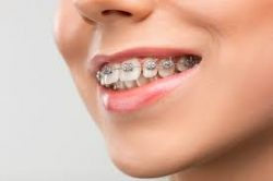How Much Do Braces Cost for Children? | IVANOV Orthodontic Experts