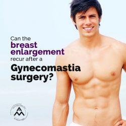 Male Breast Reduction surgeon in Delhi
