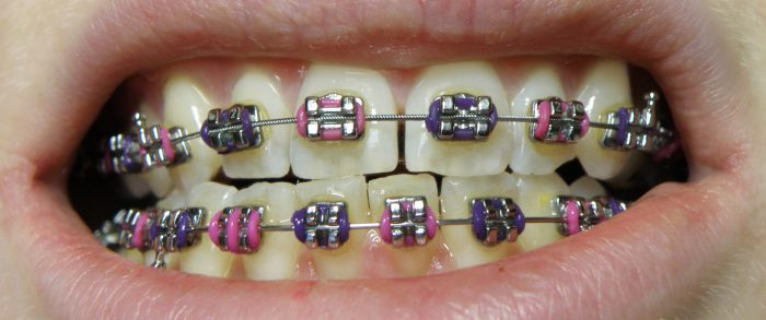 WHAT IS THE PROCESS OF GETTING BRACES BY AN ORTHODONTIST?