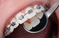 Find An Orthodontist Near Me