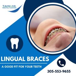 The Best Alternative for Traditional Metal Braces