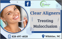 Transparent Aligners for an Aesthetically Pleasing Smile
