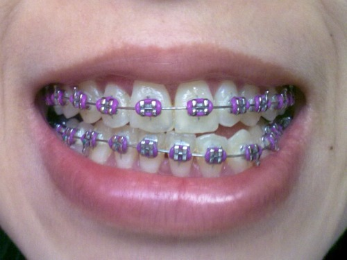 ORTHODONTIC CARE AND DENTAL INSURANCE