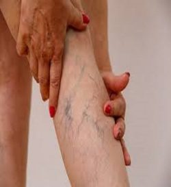 Varicose Vein are the Center in Near Me