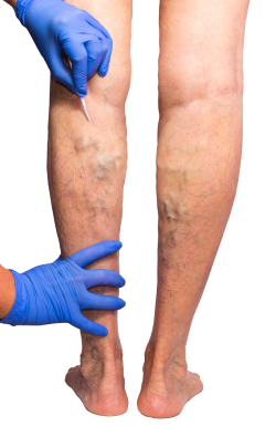 Vein Treatment are the Center in the Near Me