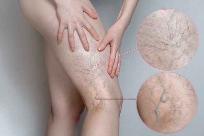 Veins Treatments are the in Near Me