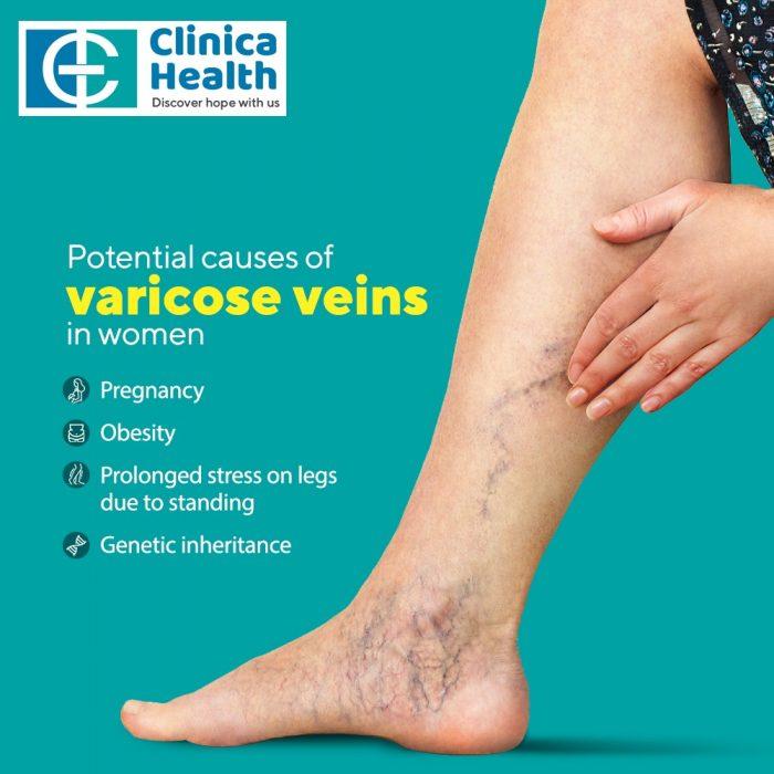 Expert Vascular Surgeon in Kolkata – Clinica Health