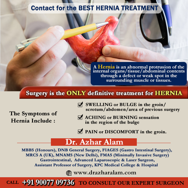 Hernia Doctor in Kolkata | Best Hernia Specialist Surgeon | Dr. Azhar Alam