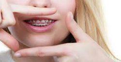 Best Orthodontist For Braces