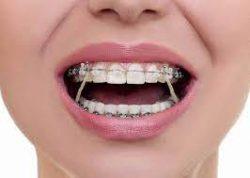 Orthodontist Near Me Open Saturday near me