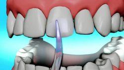 Teeth Bonding Near Me