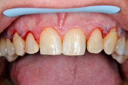 What Is a Gingival Gum Graft?