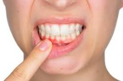 How is the health of your teeth and gums?