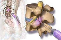 What is the process of a facet joint injection?
