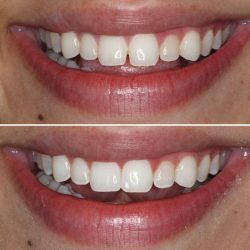 Cosmetic Tooth Bonding Near Me