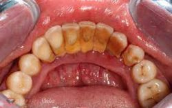 Dental Polishing in Houston