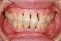 Periodontal Gum Disease Treatment