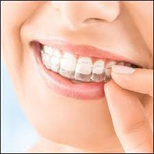 HOW MUCH DO CLEAR BRACES COST?