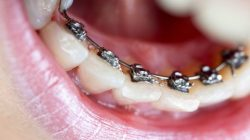 WHAT ARE INCOGNITO BRACES? HOW EFFECTIVE ARE THEY?