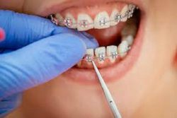 HOW CAN YOU FIND AN ORTHODONTIST NEARBY?