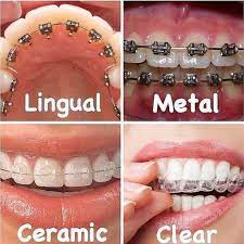 WHAT ARE THE VARIOUS TYPES OF BRACES?