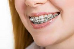 HOW TO FIND BRACES ORTHODONTIST NEAR ME